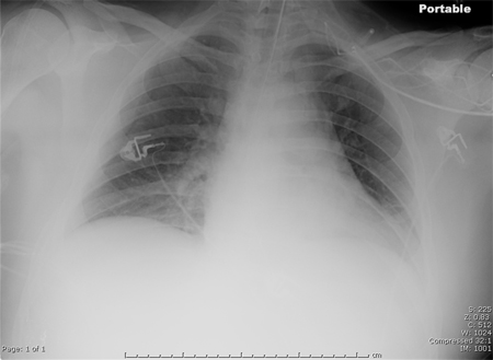 Hospitalacquired Pneumonia Causes, Symptoms, Treatment. Motor Home Insurance Quotes D C Appliance. Nursing Schools In Palm Beach County. Business Administration Finance. Software Developer College Teach High School. How To Finance A Small Business Start Up. How To Make A Dot Plot Cost Margin Calculator. Savings Account Interest Rate Comparison. Sr22 Insurance California Quotes