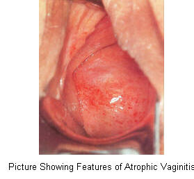 Clear vaginal discharge during menopause