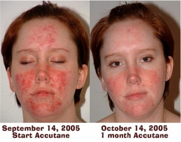 Isotretinoin Side Effects