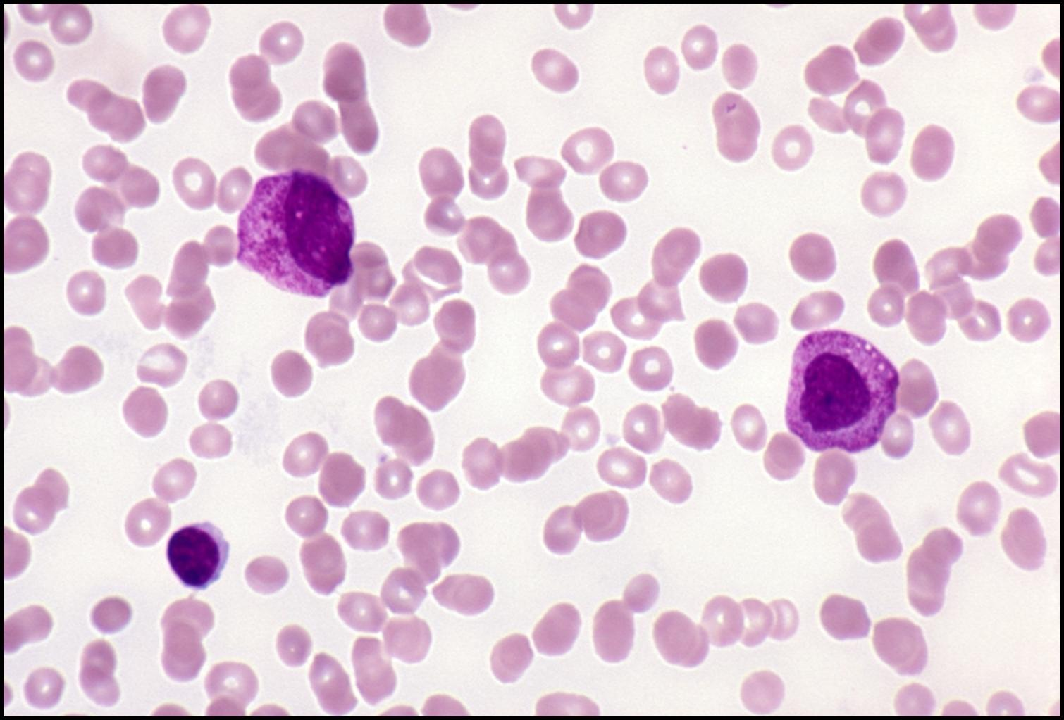 Acute lymphoblastic leukemia effect on the developmental process