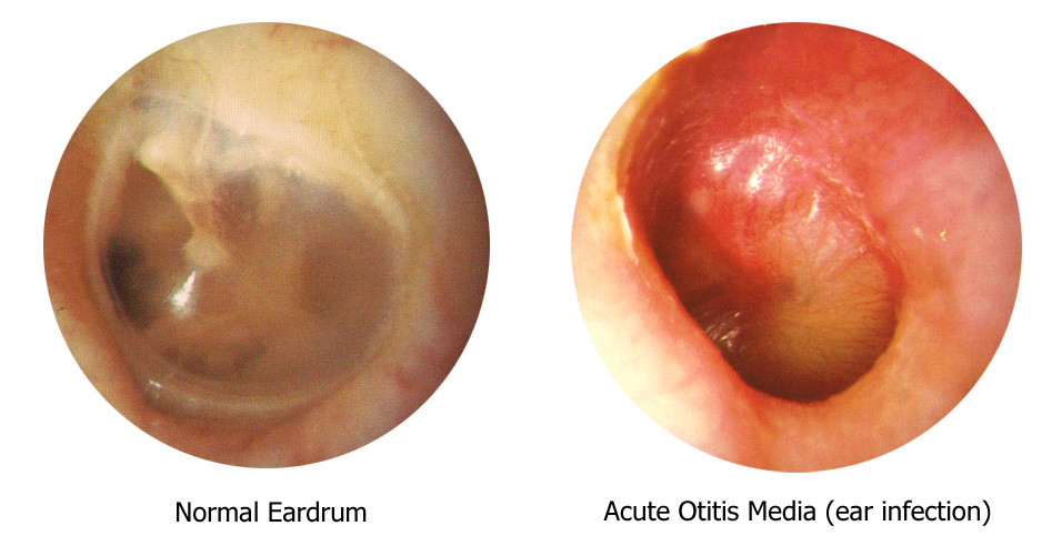 Ear infection mucus symptoms