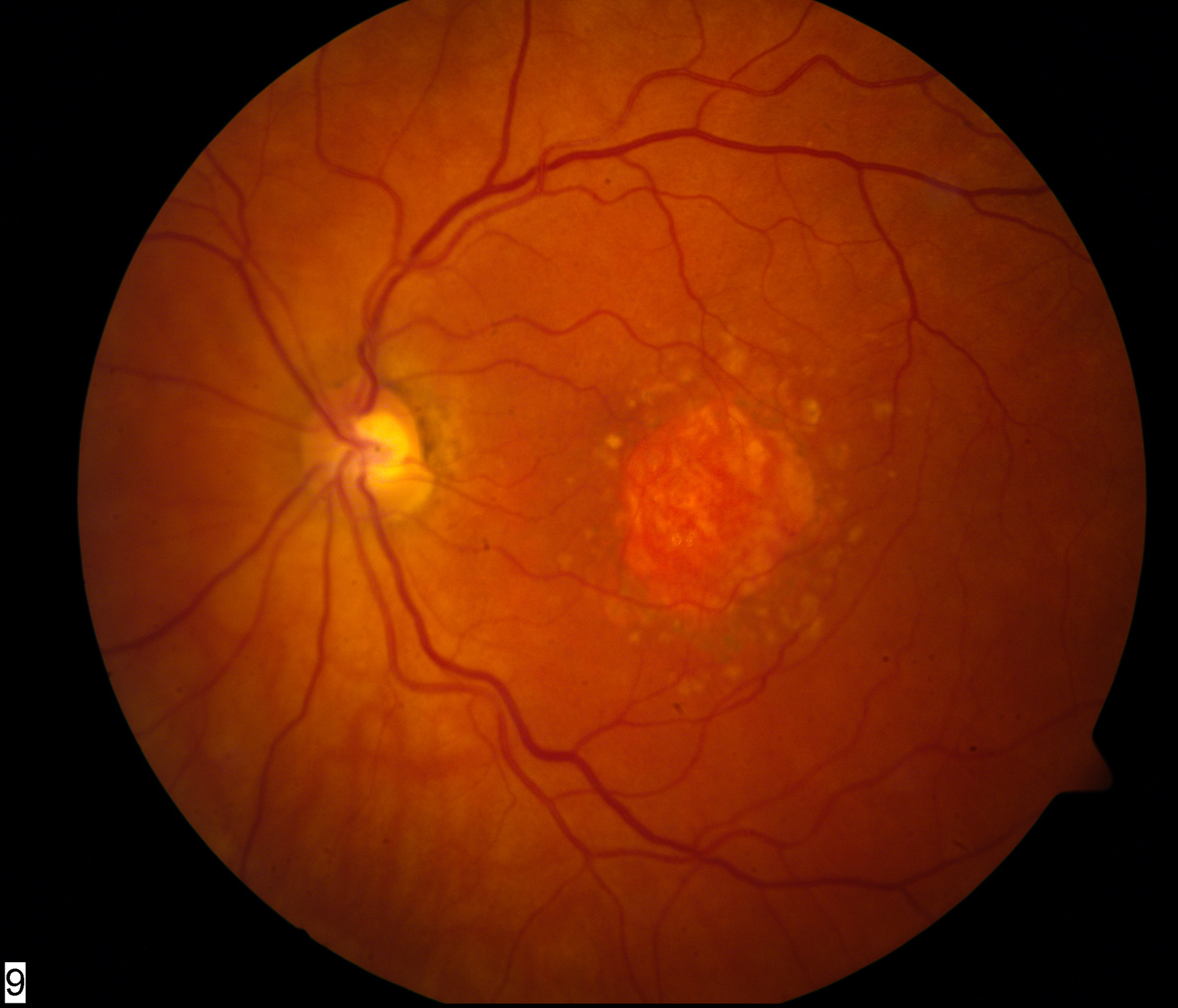 macular dystrophy retina - photo #27