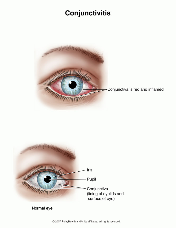 conjunctivitis chlamydia infection and n d web Introduction conjunctivitis is a common patient complaint it is the most likely diagnosis in a patient with a red eye and discharge (see evaluation of the red eye.