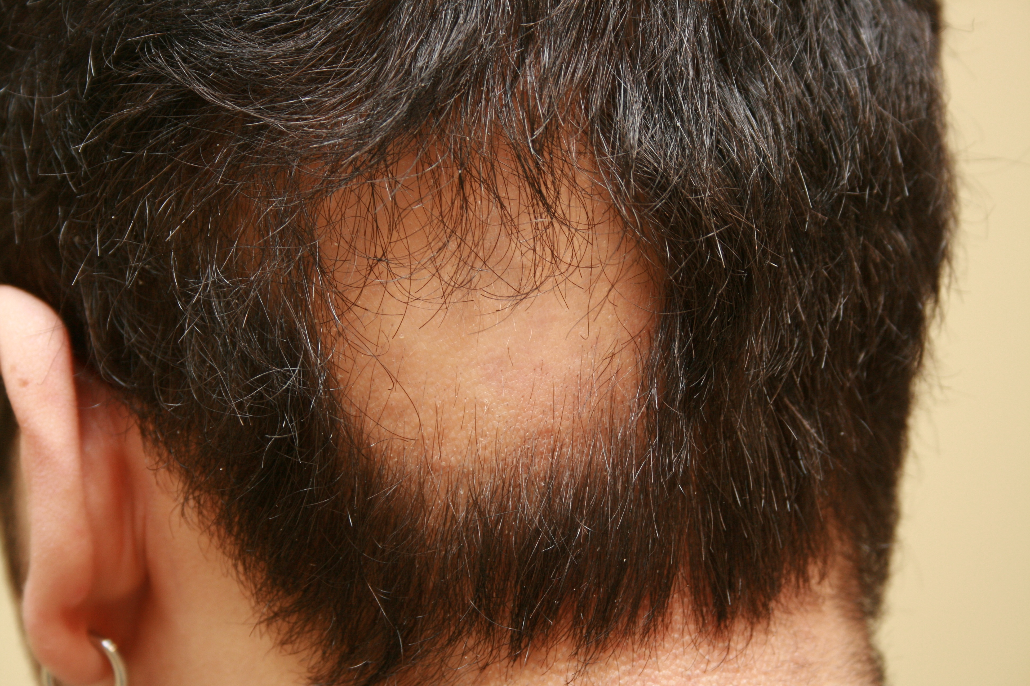 the causes and treatment of hair loss alopecia areata Hair loss: common causes and treatment t grant phillips, md  gradual onset of hair loss alopecia areata history and.