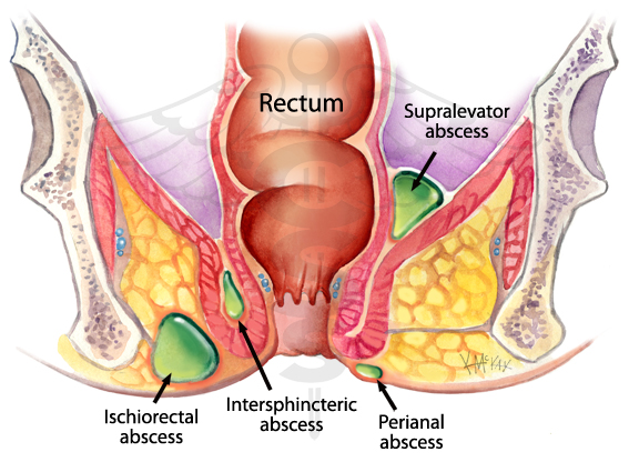 rectum inflamation due to anal sex