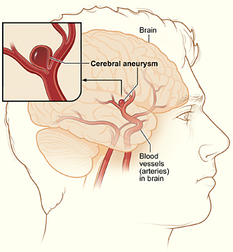 a look at the causes of the condition aneurysm An aneurysm is a condition in which the arterial wall weakens creating a bulge or distention in the affected artery aneurysms can happen in various arteries including those supplying blood to the aorta and the brain.