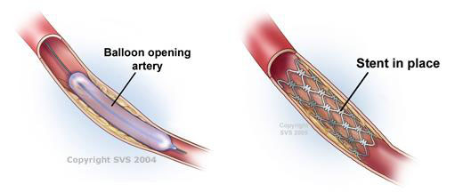 angioplasty thesis Complications of right heart catheterization procedures in patients with pulmonary hypertension in experienced centers  doctoral thesis of daniel brestowsky,.