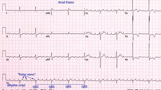 Atrial Flutter Natural Treatment