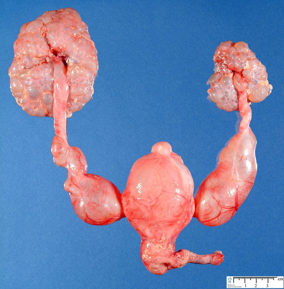 Bilateral hydronephrosis. Causes, symptoms, treatment ...