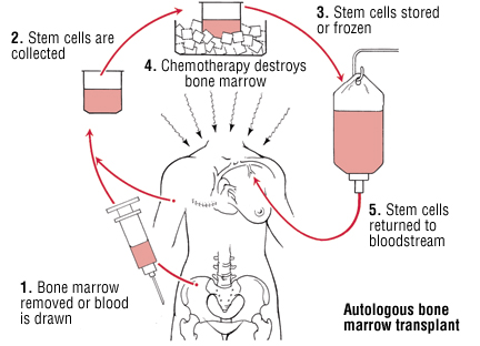 bone marrow donation The history of stem cell transplant goes back as early as 1939, when the first documented clinical transplant was performed in 1968, the first successful.
