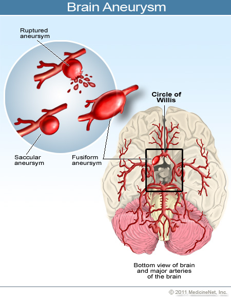 causes and symptoms of brain aneurysm View messages from patients providing insights into their medical experiences with brain aneurysm - symptoms and signs share in the message dialogue to help others and address questions on symptoms, diagnosis, and treatments, from medicinenet's doctors.
