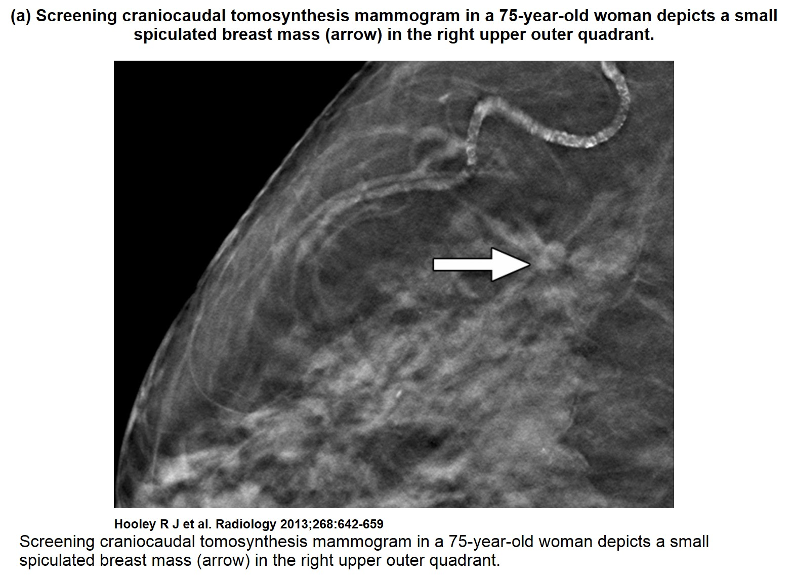 average glandular dose in digital mammography and breast tomosynthesis The average glandular dose, number of tomosynthesis images and number of patients requiring spot compression views were calculated for three groups of consecutive patients: immediately prior to, immediately after and 20 months after the implementation breast tomosynthesis (bt.