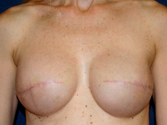 Dating after mastectomy reconstruction