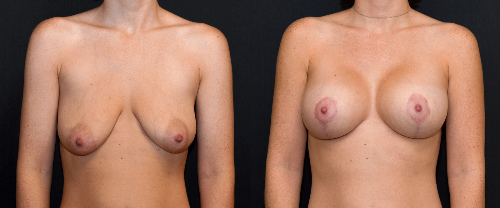Breast Lift with Augmentation - Before & After