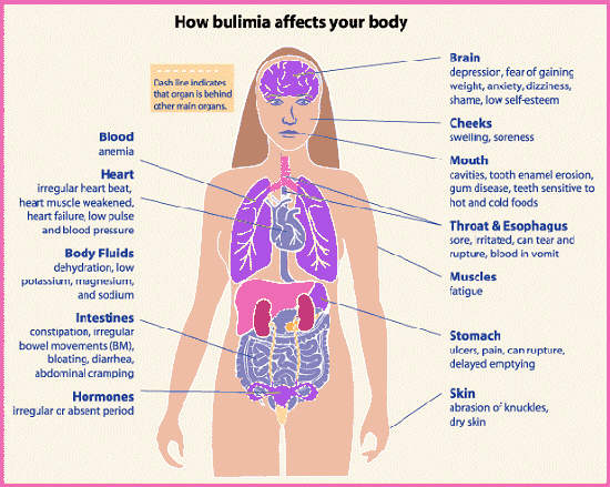 bulimia is mean Meaning of eating disorder what does eating disorder mean proper usage and pronunciation (in phonetic transcription) of the word eating disorder.