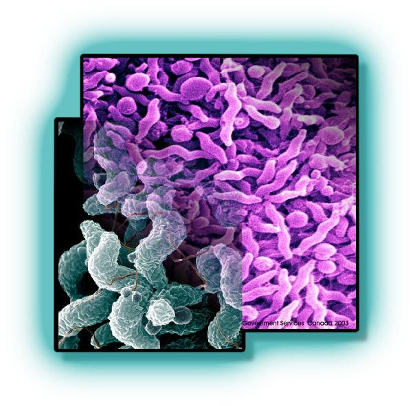 Campylobacter Enteritis Causes Symptoms Treatment