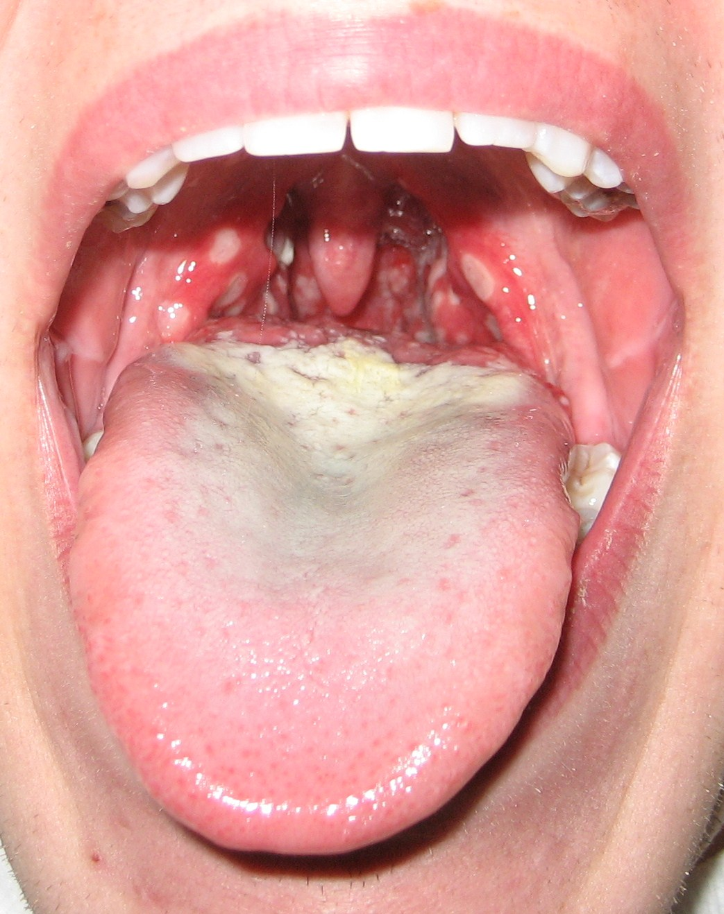 Canker SoreCanker Sore On Tonsil Causes