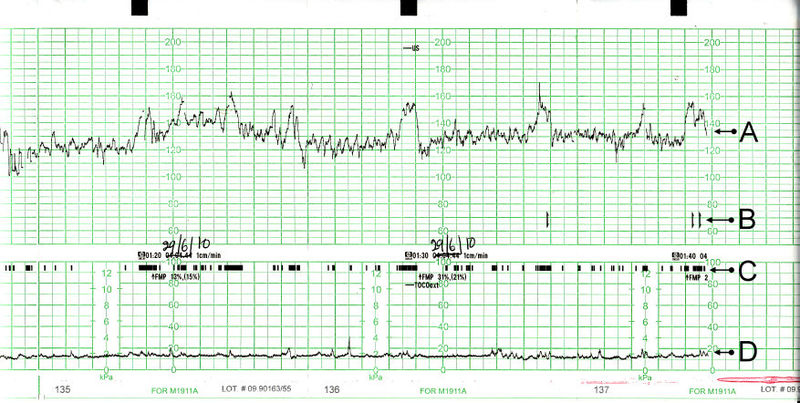 Cardiotocography Causes Symptoms Treatment Cardiotocography