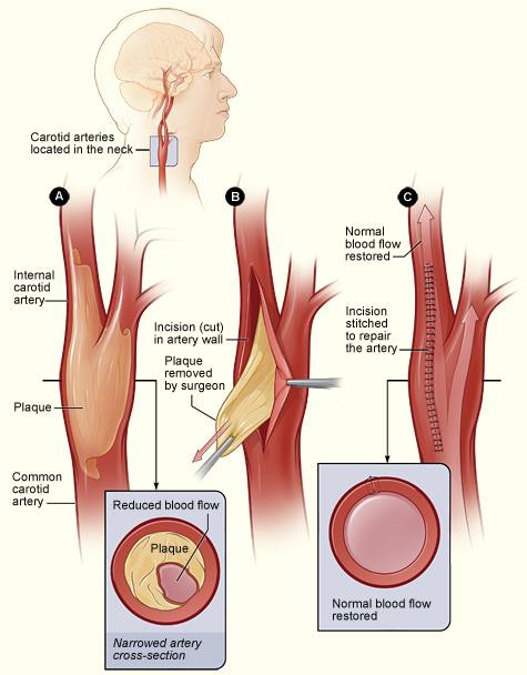 carotid artery disease Learn more about carotid artery disease symptoms, diagnosis, & treatment at  baptist health, kentucky & southern indiana's preferred healthcare provider.