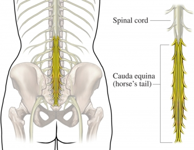 Cauda Equina Syndrome Causes Symptoms Treatment Cauda