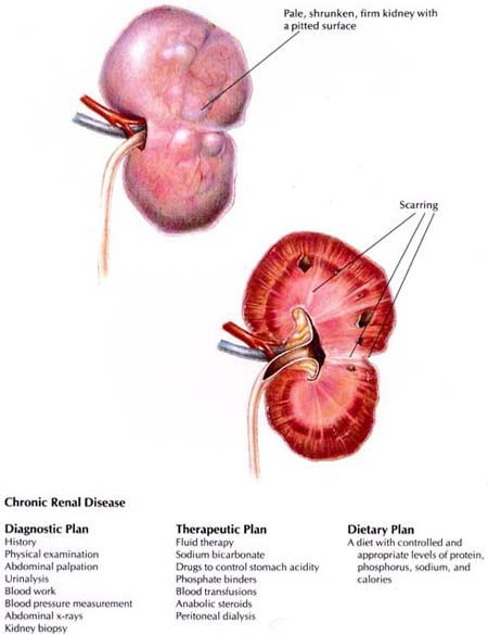 Chronic Renal Failure Crf Causes Symptoms Treatment