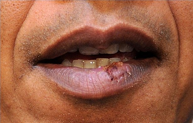 Cold sores (oral herpes). Causes, symptoms, treatment Cold ...