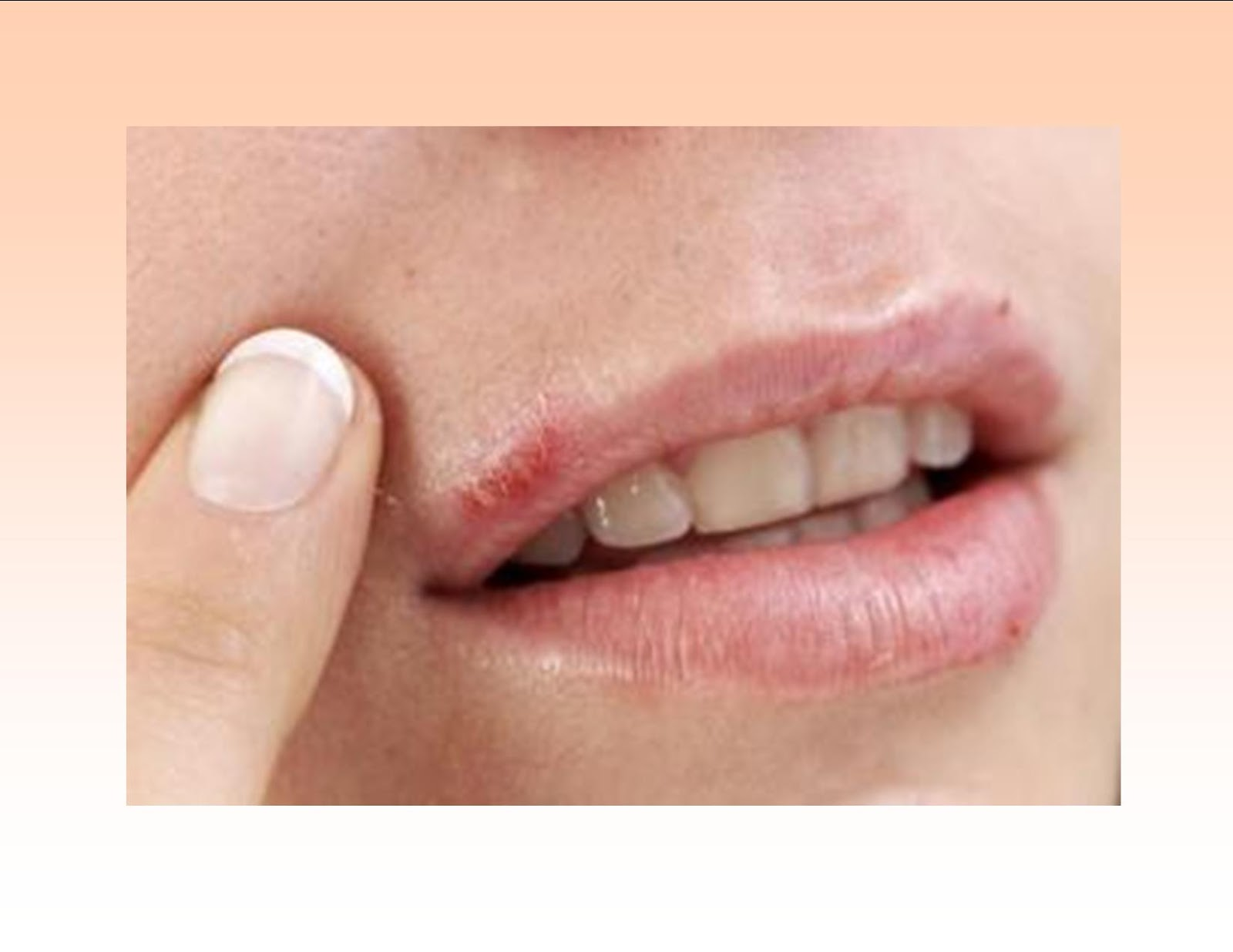 Blisters and mouth ulcers