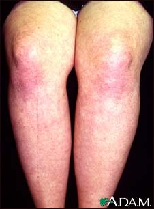 collagen vascular disease: