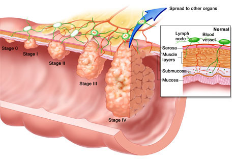 Colon Cancer Screening Causes Symptoms Treatment Colon
