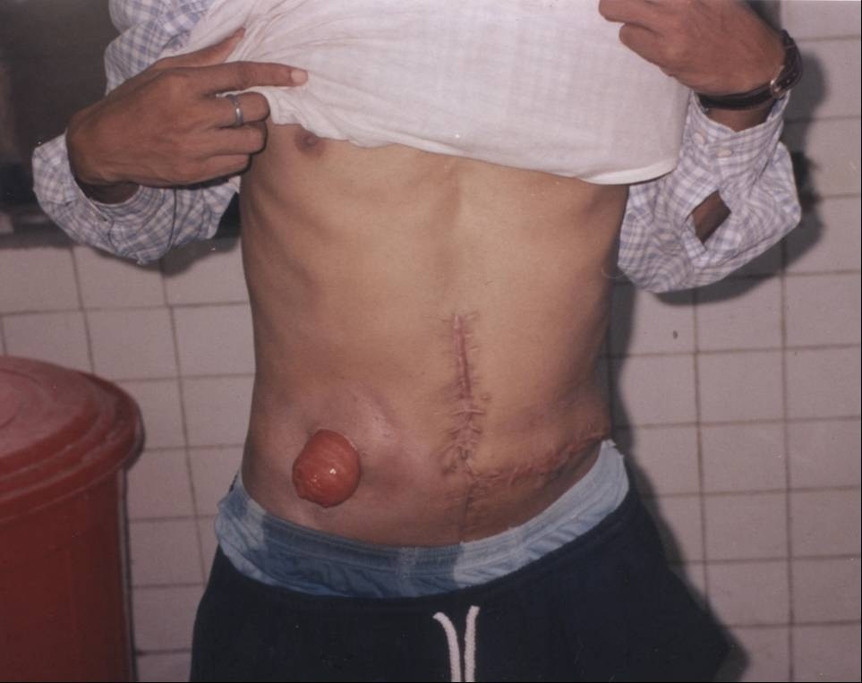 colostomy_1.jpg