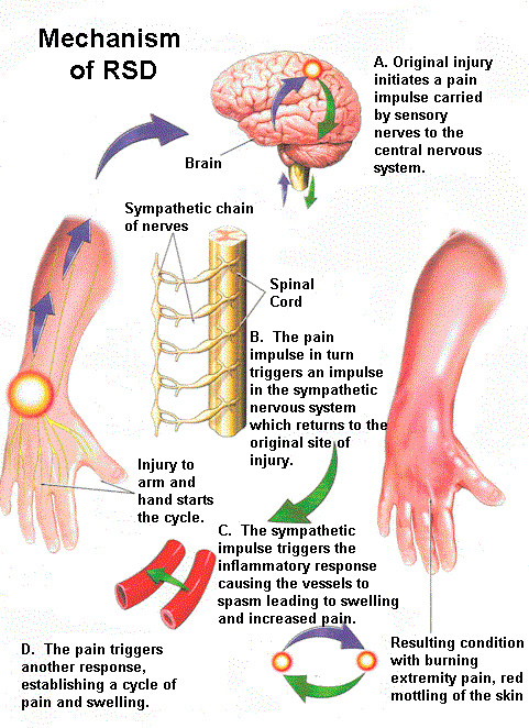 Complex Regional Pain Syndrome Causes Symptoms