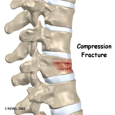 Compression Fracture Of The Back Causes, Symptoms. Naruto Shippuden Signs. Tiger Signs. April 19 Signs. Vehicular Heatstroke Signs