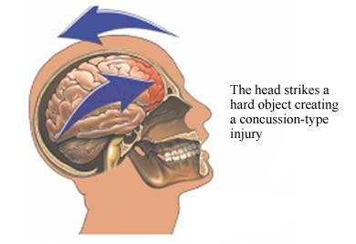 Concussion on Unlabeled Car Diagram