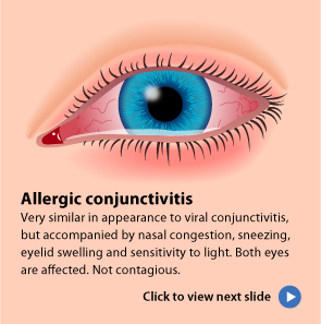 signs and symptoms of conjunnctivitis