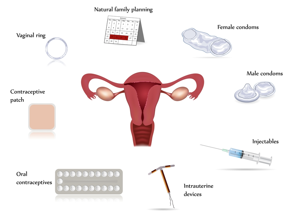 marketing male contraception Birth control, also known as contraception, is designed to prevent pregnancy birth control methods may work in a number of different ways: preventing sperm from getting to the eggs.