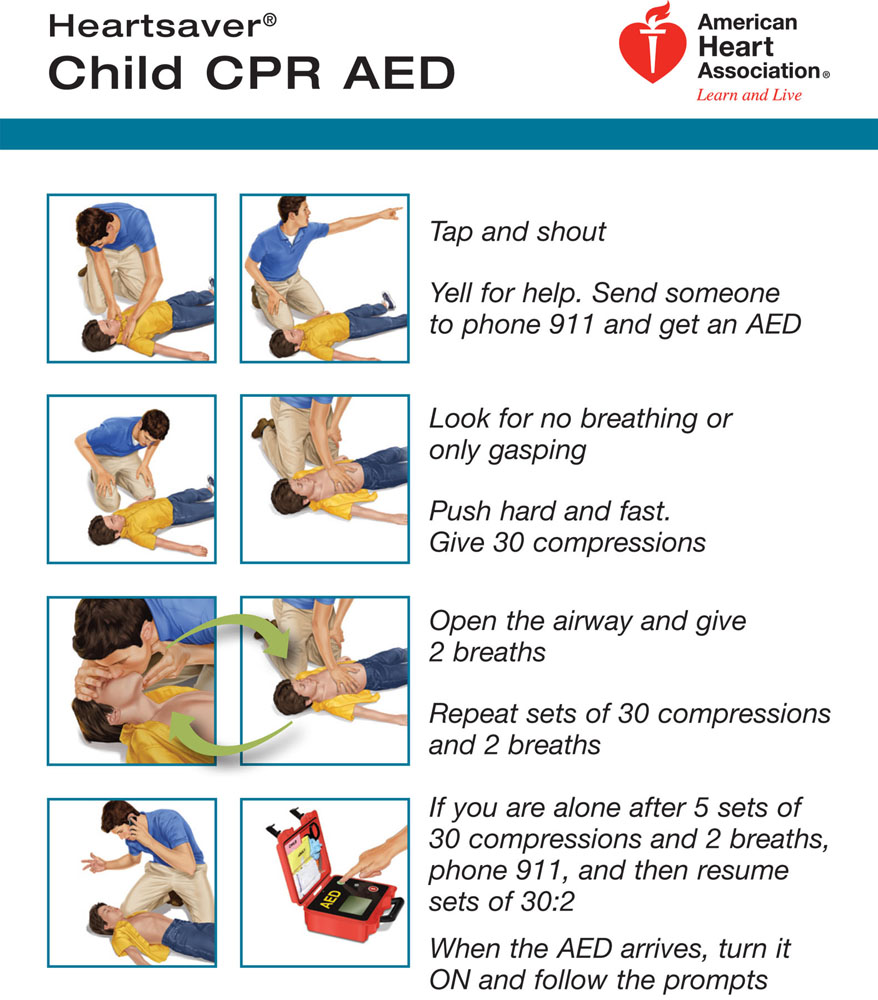 Cpr infant causes symptoms treatment cpr infant cpr infant 1betcityfo Image collections