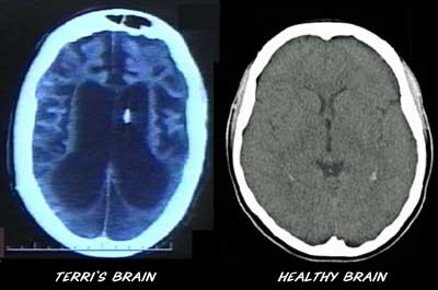 Cranial Ct Scan Causes Symptoms Treatment Cranial Ct Scan