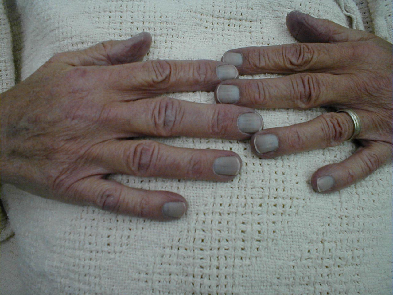 Cyanosis Causes Symptoms Treatment