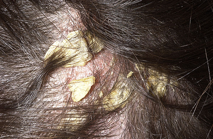What Causes Dandruff Natural Hair