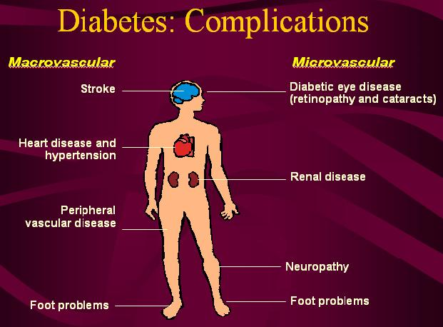 Type 2 diabetes caused by bacteria list