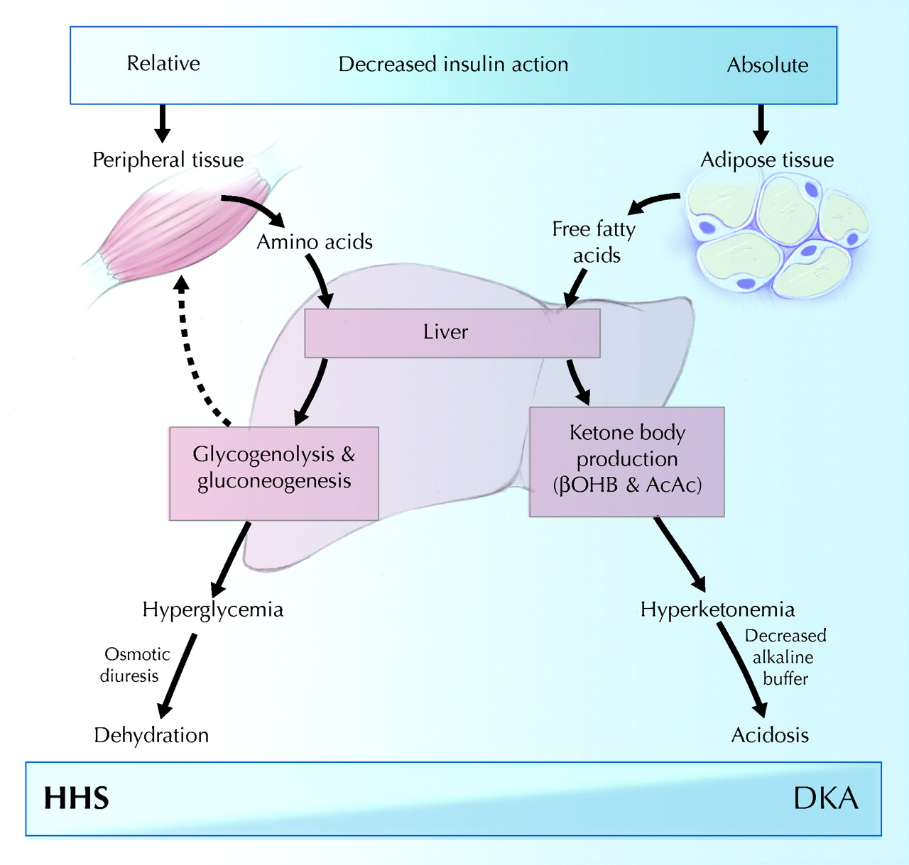 Severe hyperglycemia hyperosmolality and dehydration ...