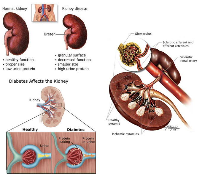 How Does Kidney Disease Affect the Heart?