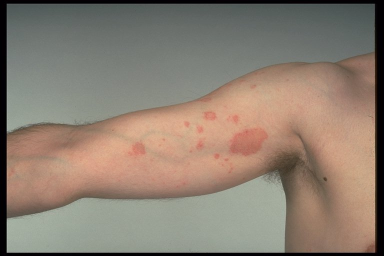 What is Discoid Eczema? - Medical News Today
