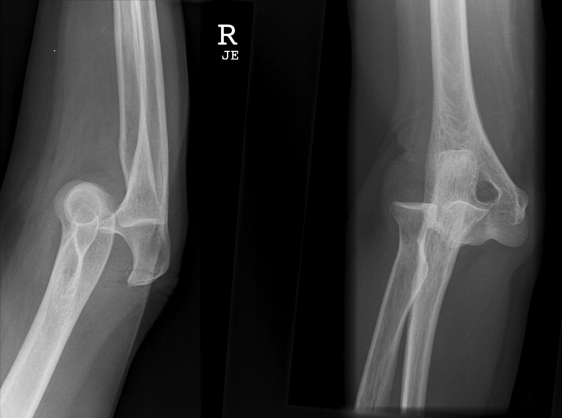 Anterior Vs Posterior Elbow Dislocation