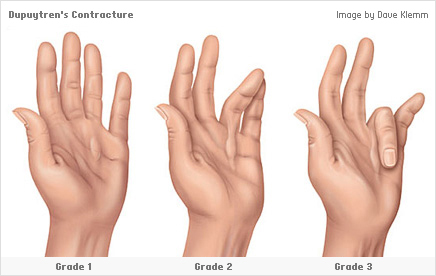 Dupuytren's Contracture. Causes, symptoms, treatment ...