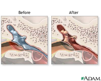 how to clean ears with ear tubes