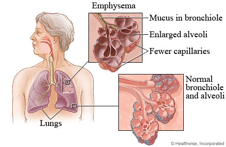 a labeled diagram of the cross section of the skin diagram of the lungs with ipf emphysema (copd). causes, symptoms, treatment emphysema (copd)