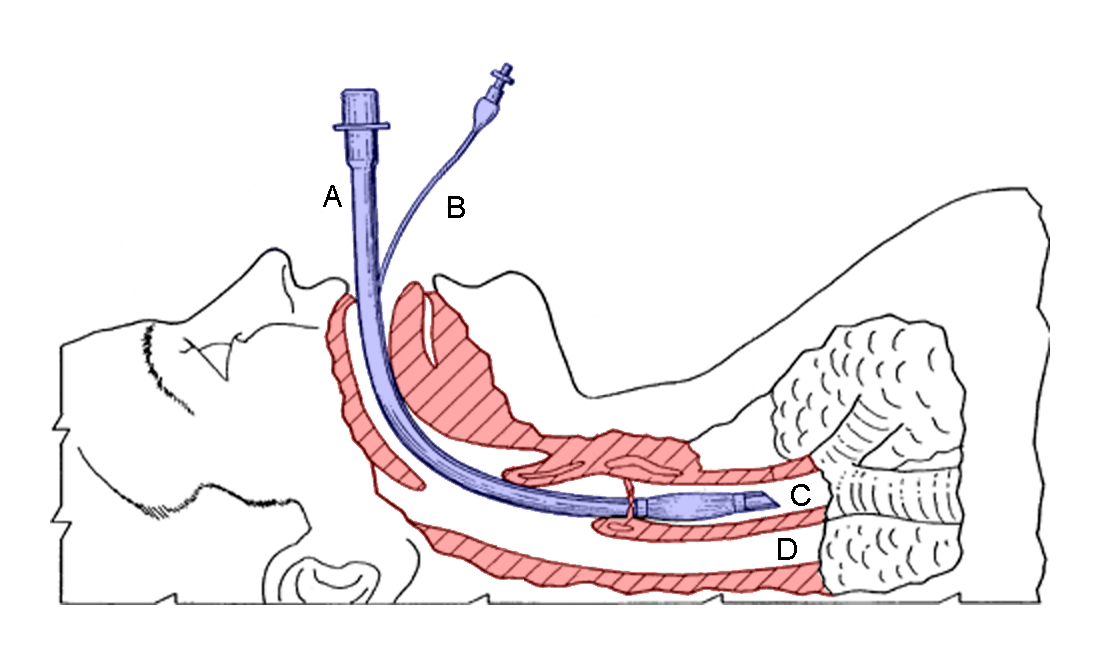 endotracheal intubation video - photo #1