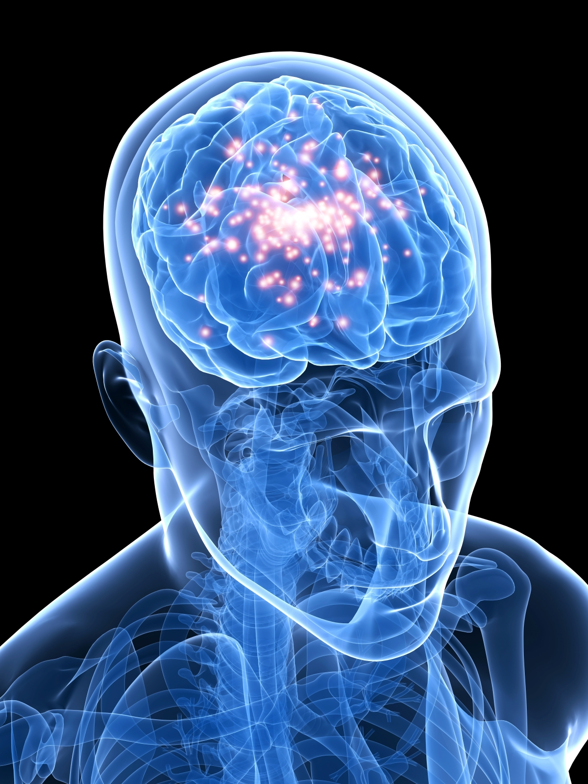 the idea of epilepsy as a brain disorder What are bipolar seizures  bipolar disorder itself is remarkably like epilepsy in some ways  the idea that the two conditions exist right next to one.