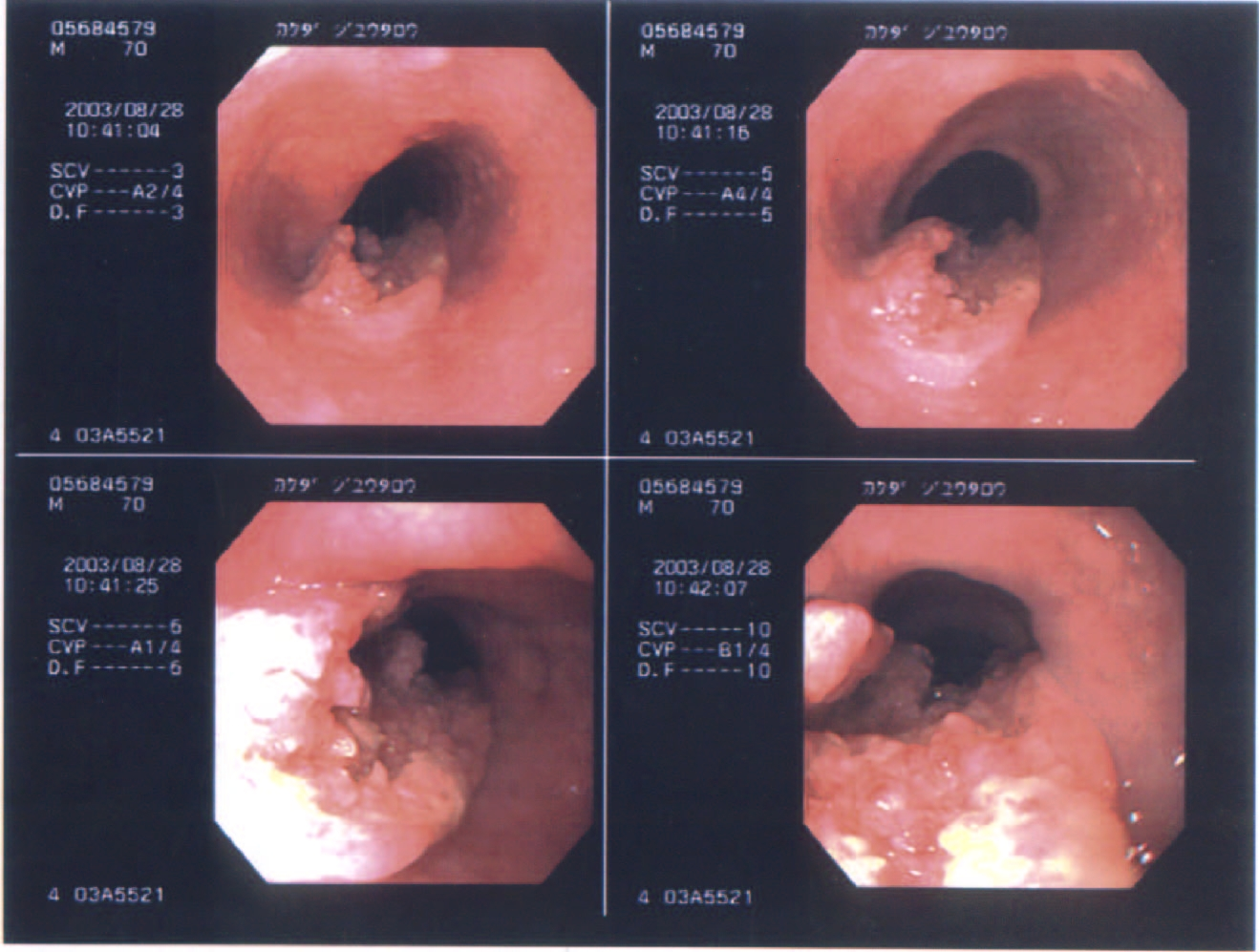 diagnosis symptoms and treatment of esophageal cancer Esophageal cancer is a very complicated cancer because many symptoms are not significant until after the cancer has spread  diagnosis, treatment,.